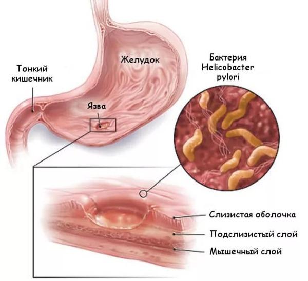 Энтероколит кишечника. Симптомы и лечение у взрослых народными средствами, препараты, диета. Острый, хронический, бактериальный, инфекционный, неинфекционный, вирусный, псевдомембранозный