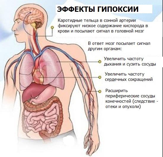 Энцефалопатия головного мозга. Что это такое, симптомы, лечение после инсульта, травмы, наркоза, операции народными средствами, лекарствами