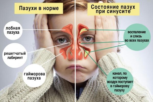 Гентомицин для уколов внутримышечно. Показания, инструкция по применению, как разводить