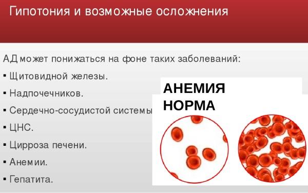 Гипотония. Причины, симптомы и лечение пониженного давления. Препараты, народные средства