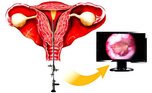 Гистероскопия матки (удаление полипа) в гинекологии. Подготовка, анализы, наркоз, как проводится, последствия