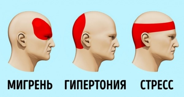 Головные боли у женщин. Причины, лечение цервикокраниалгии, сосудистых напряжений, кластерных, в виске, затылке, лобной части