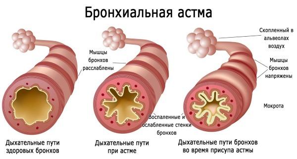 Хронический бронхит. Симптомы и лечение у взрослых. Препараты, эффективные народные средства в домашних условиях