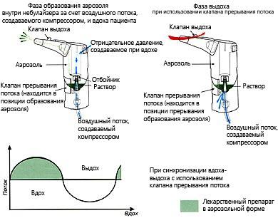 Ингалятор для детей от кашля и насморка: универсальный небулайзер, ультразвуковой, компрессорный. Рейтинг, цены