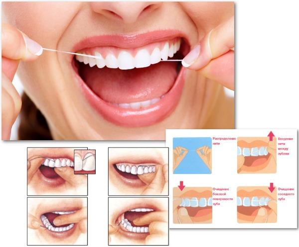 Как удалить зубной камень (кариес) в домашних условиях без вреда эмали. Народные и косметологические средства