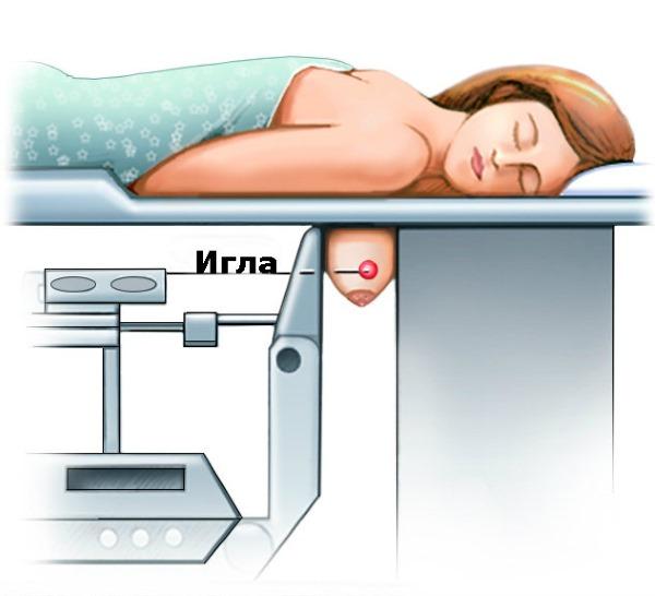 Кальцинаты в молочной железе. Что это такое: единичные, рассеянные микрокальцинаты, точечные на маммографии, УЗИ. Причины, лечение, диета