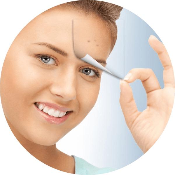 Клещ демодекс на лице. Лечение народными средствами на глазах, ресницах, веках, препараты. Симптомы, анализы