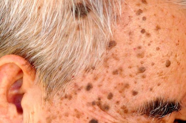 Кожные болезни у человека. Виды, симптомы, фото и описание. Лечение народными средствами, препараты