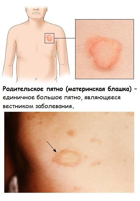 Лишай у ребенка. Фото признаков на теле, лице, голове, лечение народными средствами, медикаментозно