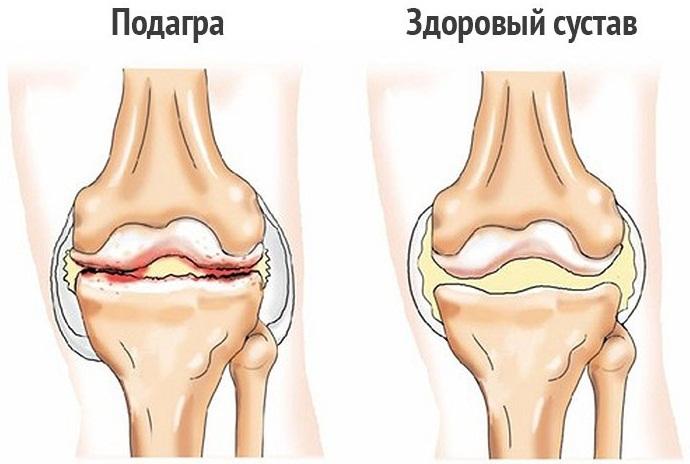Мениска коленного сустава. Что это такое, симптомы разрыва, болезни, травмы, воспаления. Лечение, операция, последствия удаления