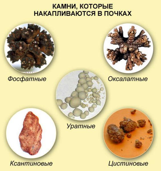 Мочекаменная болезнь. Симптомы и лечение у женщин травами, лекарства, диета. Как снять приступ в домашних условиях
