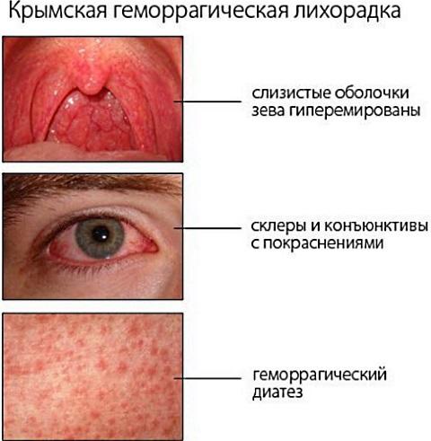Мышиная лихорадка. Симптомы у мужчин, женщин, как проявляется, передаётся. Последствия, лечение