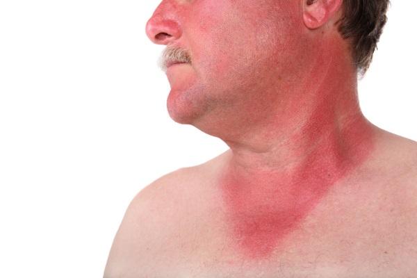 Мышиная лихорадка – первые признаки, симптомы, как передается мышиная лихорадка, лечение, профилактика