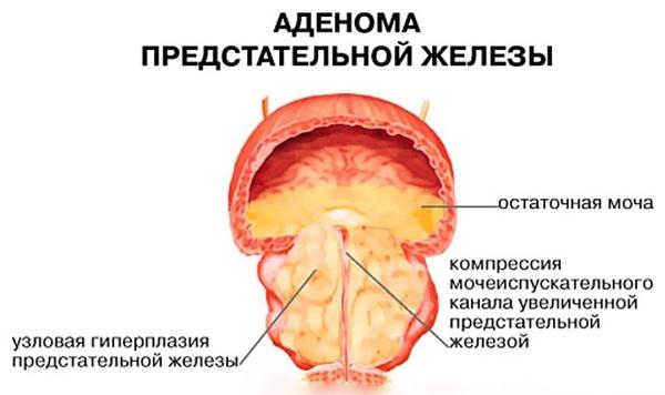 Настойка золотого уса на водке. Лечебные свойства, применение для суставов, при онкологии. Противопоказания