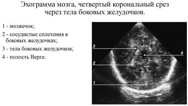 Нейросонография головного мозга у новорожденных. Нормы, таблица, когда делается, расшифровка результатов