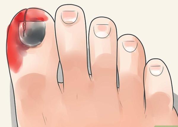 Ноготь отошел от ногтевого ложа на ноге, болит. Причины, лечение народными средствами, мази