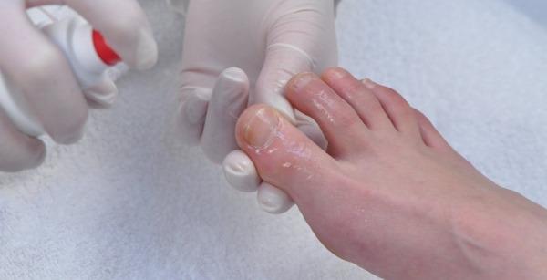 Ноготь отошел от ногтевого ложа на ноге, болит после травмы, удара, ушиба, фото. Причины, лечение на дому народными средствами, мази
