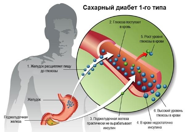 Норма сахара в крови по возрасту: таблица, симптомы повышенного. Медикаментозное лечение, диета, народные средства