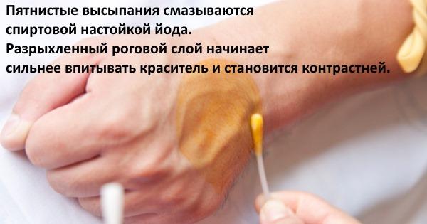 Отрубевидный лишай у человека. Симптомы, причины, лечение: препараты, мази, таблетки
