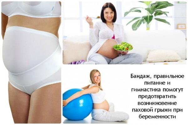 Паховая грыжа у женщин: симптомы, лечение без операции, народными средствами. Операция по удалению, последствия