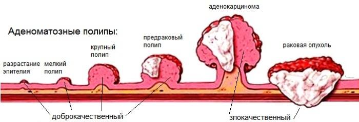 Полипы в кишечнике. Симптомы и лечение, причины образования, признаки. Как обнаружить, удалить, диета, питание, клизма. Анализ крови, операция, какой наркоз