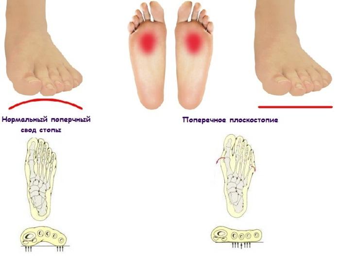 Поперечное плоскостопие. Симптомы и лечение в домашних условиях: стельки, народные средства, упражнения