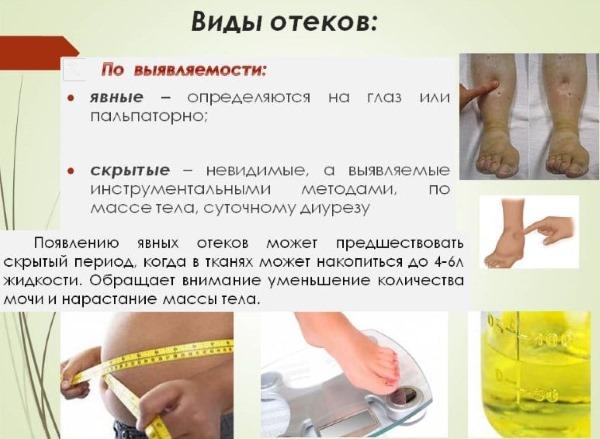 Причины отека ног в щиколотках к вечеру, в жару, при беременности, у пожилых. Лечение медикаментозно, мази, народные средства