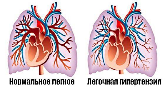 Привкус железа во рту. Причины во время еды, при беременности, месячных, при кашле, по утрам, при сухости на языке, тошноте