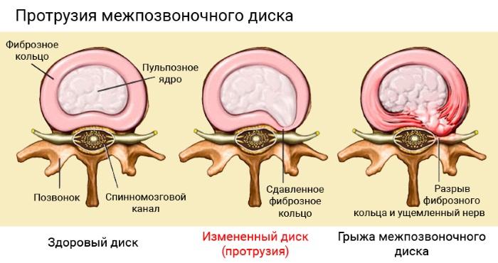 Что такое протрузия дисков позвоночника поясничного крестцового отдела