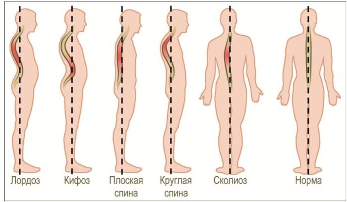 Протрузия дисков позвоночника шейного, пояснично-крестцового отдела. Что это такое, симптомы, как лечить, гимнастика