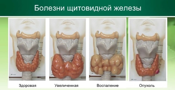 Щитовидная железа. Симптомы заболевания у женщин, мужчин. Внешние признаки, воспаление, диагностика и лечение увеличенной щитовидки