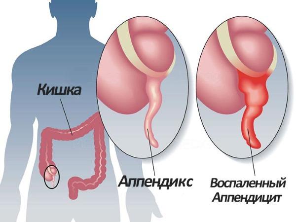 Симптомы аппендицита у женщин, признаки при беременности. Лечение народными средствами, антибиотиками, после операции