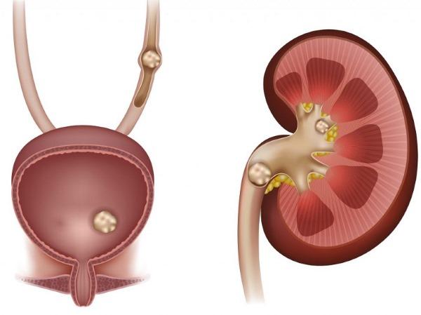 Симптомы и лечение цистита у мужчин. Медикаменты, народные средства, препараты в таблетках, другие лекарства