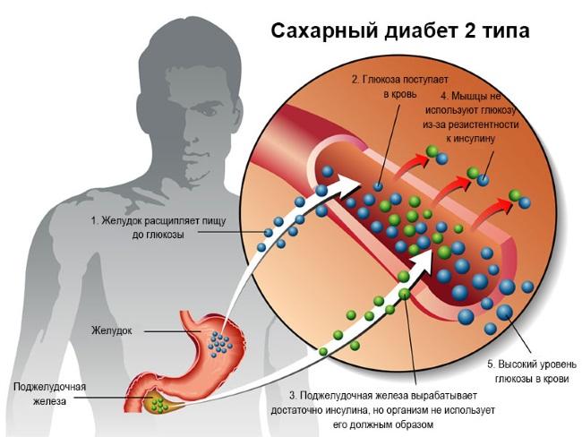 Симптомы сахарного диабета у женщин. Первые признаки, скрытые, основные, клинические, 1, 2 типа. Норма сахара в крови