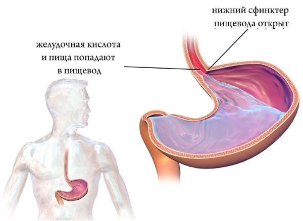 Смекта. Инструкция по применению, суспензия при поносе, рвоте, тошноте, отравлении, гастрите, аллергии, беременности. Как разводить, принимать, показания