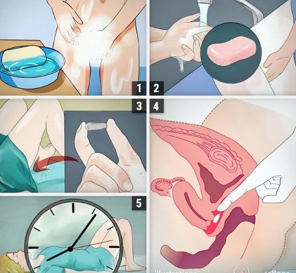 Облепиховые свечи в гинекологии. Показания, инструкция применение, цены и отзывы