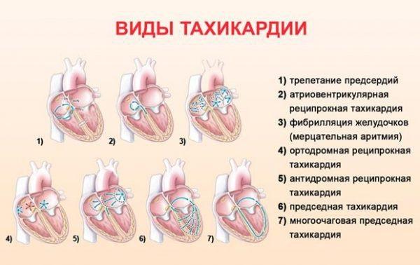 Тахикардия. Симптомы и лечение пароксизмальной, желудочковой, наджелудочковой, синусовой. Диагностика, что делать нельзя