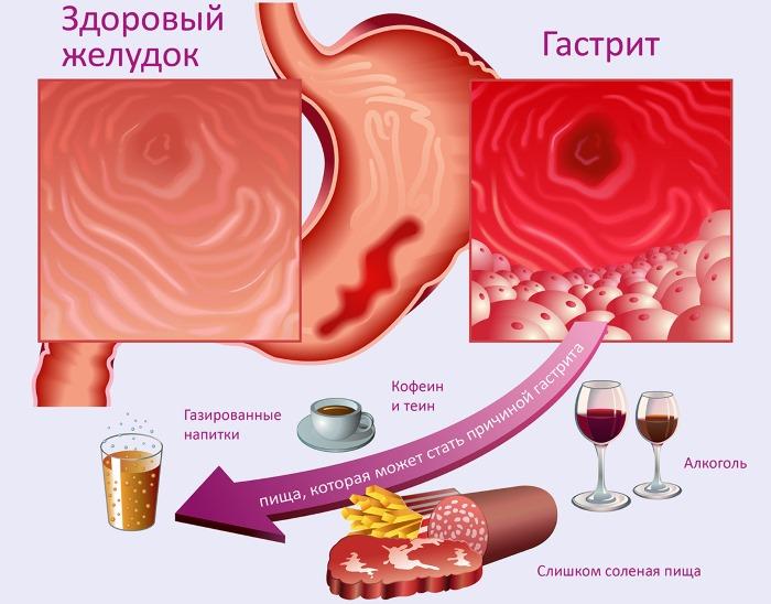Тошнота и боль в желудке. Причины, симптомы и лечение у женщин, мужчин, детей. Препараты, народные средства
