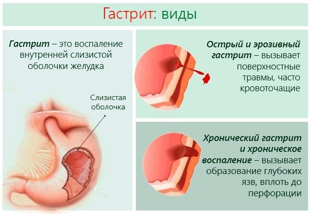 Тошнота и боль в животе, понос, рвота, температура, слабость, озноб. Причины, первая помощь, лечение