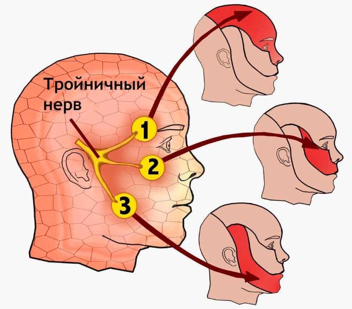 Троичный нерв. Где находится, чем лечить воспаление. Диагностика, симптомы, лечение: препараты, народные средства