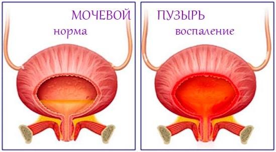 Цистит у женщин. Симптомы и лечение народными средствами, антибиотиками, лекарствами. От чего возникает, последствия