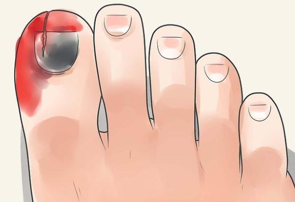 Ушиб пальца на руке, ноге, большого, указательного, кисти, стопы, сильный. Симптомы перелома, лечение, что делать, если не сгибается, опух. Первая помощь, мази