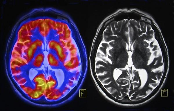 УЗИ сосудов головного мозга и шеи. Как подготовиться, как делают, чем лучше МРТ. Адреса и цены клиник