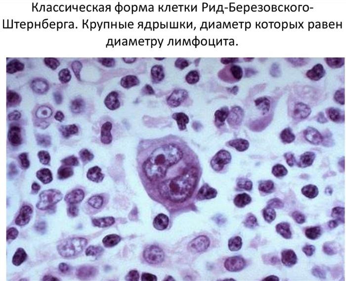 Вирусная инфекция Эпштейна-Барра. Симптомы, анализ крови на вирус, расшифровка. Лечение, схема гомеопатией, народными средствами, травами