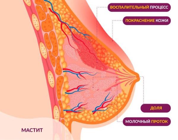 Выделения из грудных желез при надавливании. Причины у женщин перед, после месячных, при беременности, не рожавших, при климаксе. Что делать