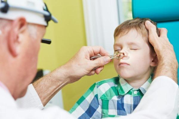 Аденоиды у детей. Симптомы, лечение воспаления, удаление. Лазеротерапия, ингаляции, капли, физиотерапия, криотерапия, гомеопатия
