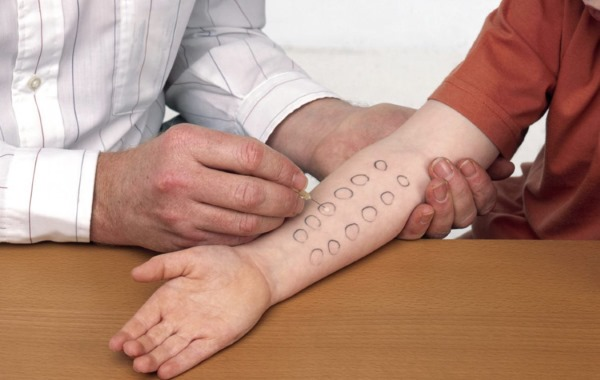 Аллергический ринит. Симптомы и лечение у взрослых. Причины возникновения, как и чем лечить: лекарственные и народные средства
