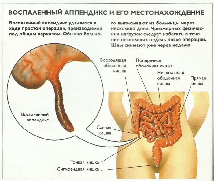 Аппендицит. Симптомы у взрослых мужчин. Стадии, осложнения, диагностика, УЗИ, лечение, диета, операция