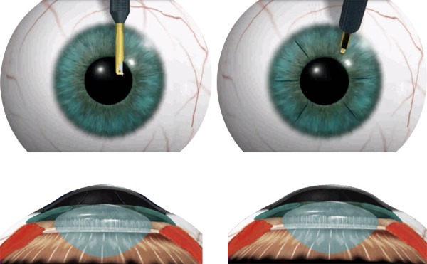 Астигматизм у детей. Лечение: линзы, очки, лазерная коррекция, операция