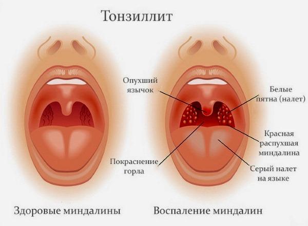 Азитромицин детский. Инструкция по применению таблетки, суспензия, капсулы. Цена, аналоги